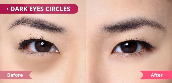 eye cream for Dark Eye Circles
