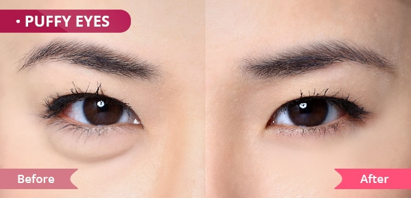 eye cream for Puffy eyes