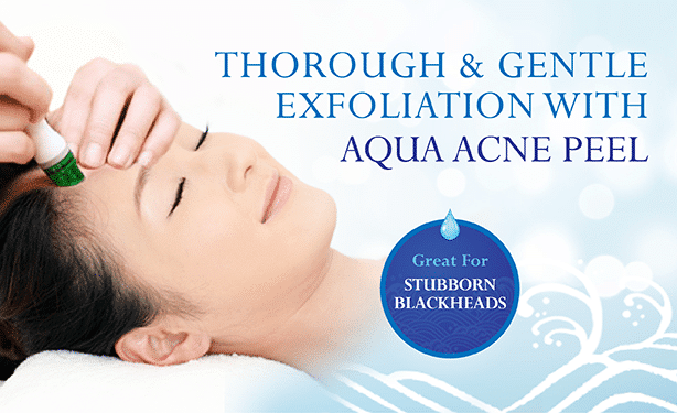 acne treatment singapore - aqua acne peel