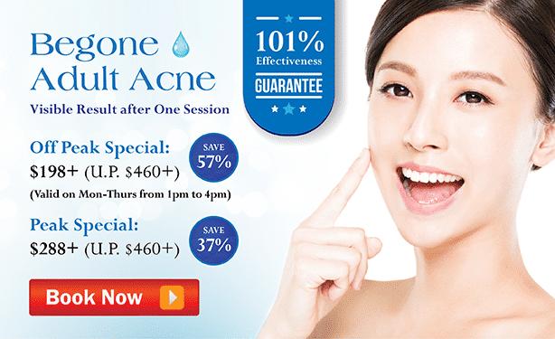 acne treatment singapore- cta
