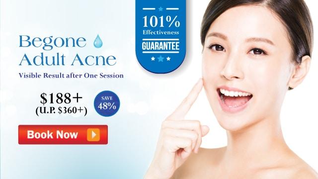 acne facial treatment singapore -cta